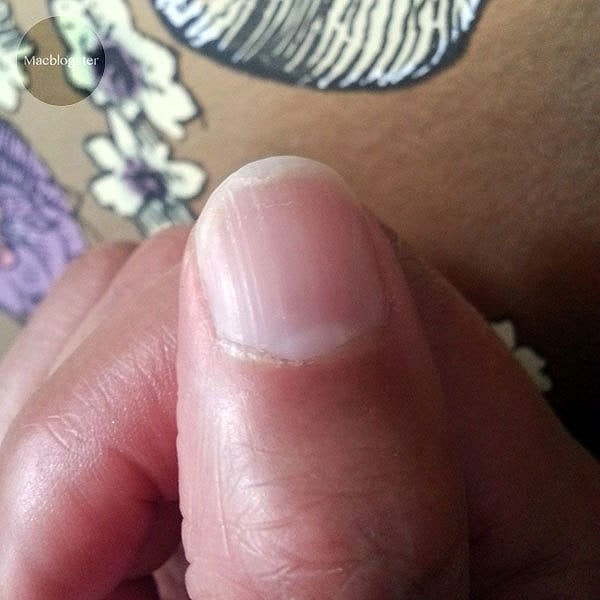 Tips tegen gespleten nagels