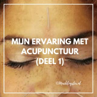 Mijn ervaring met Acupunctuur (deel 1)