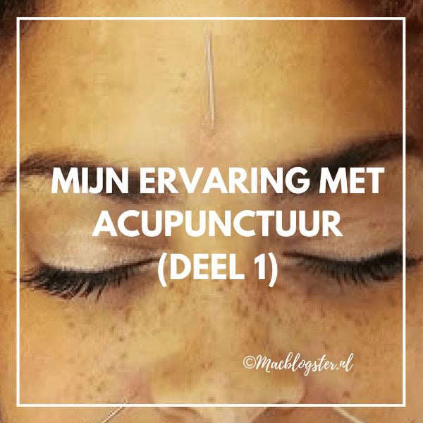 Mijn ervaring met acupunctuur