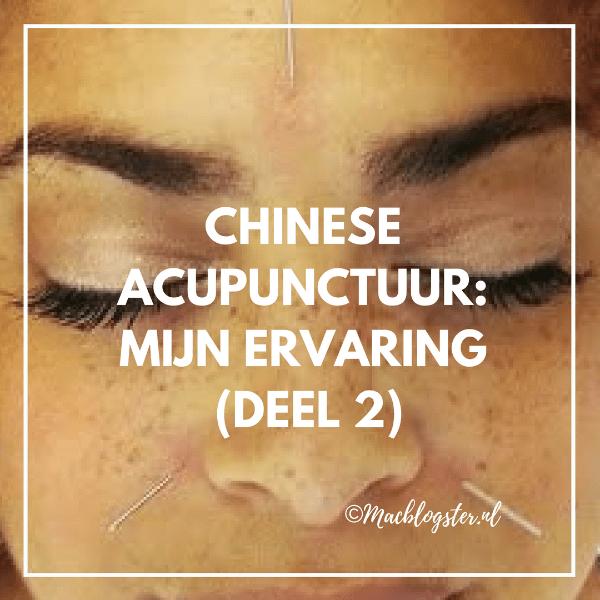 Chinese acupunctuur: mijn ervaring