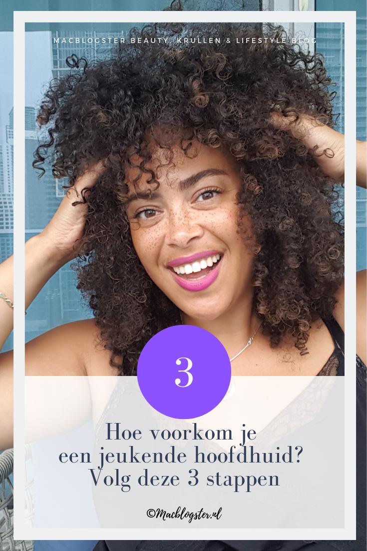 Hoe voorkom je een jeukende hoofdhuid? Volg deze 3 stappen